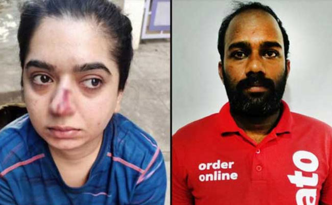 zomato delivery boy and woman hitting case